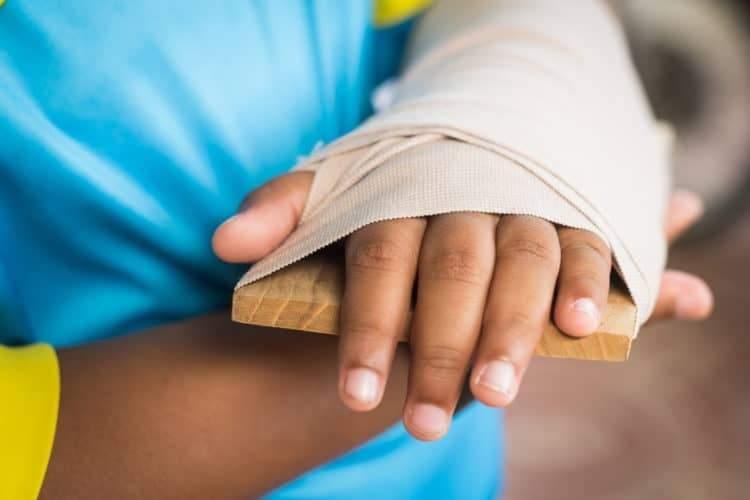 Cách sơ cứu người bị gãy tay
