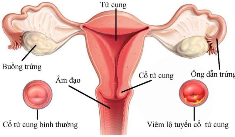 Viêm lộ tuyến cổ tử cung - nguyên nhân và cách phòng ngừa