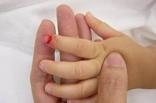 Cách sơ cứu trẻ bị dập ngón tay, ngón chân
