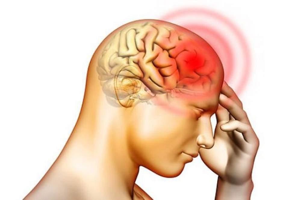 Các loại đau đầu thường gặp khiến bạn khó chịu - Tác hại của đau